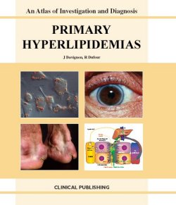 At Primary Hyperlipidemias